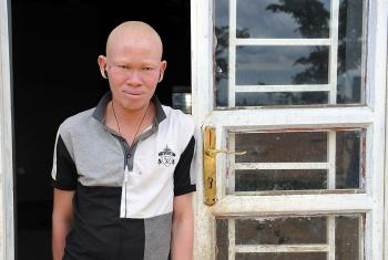 Patrick Tambure fled the Democratic Republic of the Congo with his family, because they no longer felt safe. He and four of his eight siblings have albinism. Photo: LWF/M. Renaux (2015)