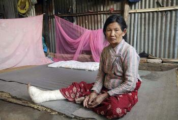 Kanchi Shrestha, 71, nurses her broken leg in a makeshift shelter. The LWF has helped Shrestha and her extended family and will help them re-build their homes. Photo: LWF Nepal